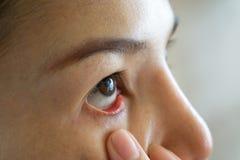 Slut för rött öga för kvinna torrt upp, trötthet, bindhinneinflammationproblem med blodkärl Öga för allergi för medicinsjukvårdbl royaltyfri foto