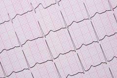 Slut upp av en elektrokardiograf också som är bekant som en EKG Fotografering för Bildbyråer