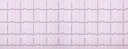 Slut upp av en elektrokardiograf också som är bekant som en EKG Arkivbilder