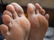 Slut upp av valkar Smärtsam havre på fötter royaltyfri fotografi