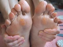 Slut upp av valkar Smärtsam havre på fötter arkivbild