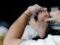 Slut upp av valkar Smärtsam havre på fötter Behandling av havre på foten royaltyfri foto