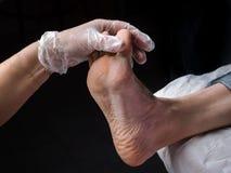 Slut upp av valkar Smärtsam havre på fötter Behandling av havre på foten royaltyfria bilder