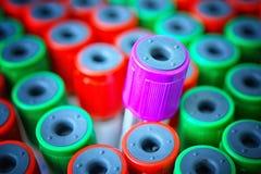 Slut upp den medicinska provröret med blodprövkopior Arkivbild