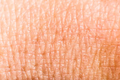 Slut upp mänsklig hud. Makroytterhud Arkivfoto