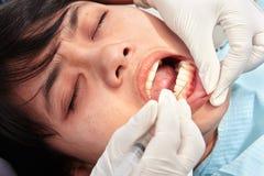 Slut upp tandundersökning Arkivfoton