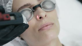 Slutet upp kosmetologhänder gör laser kärl- borttagning på kvinnans framsida med special utrustning lager videofilmer