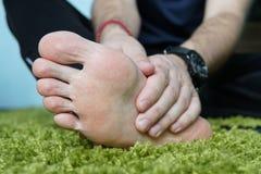 Smärta i foten Massage av manlig fot pedicures bruten fot, en öm fot som masserar hälet arkivbild