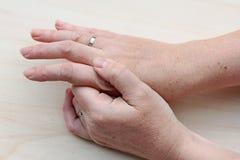 Smärta i händerna Royaltyfri Foto