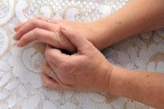 Smärta i händerna Royaltyfria Foton