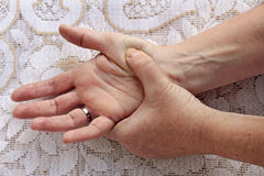 Smärta i händerna fotografering för bildbyråer