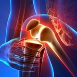 Smärta knäet - anatomistrålar Royaltyfri Foto