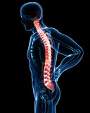 smärtar den blåa manlign för anatomi ryggen Arkivfoton