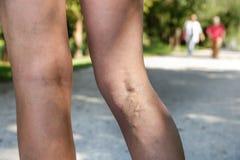 Smärtsamma åderbråcks och spindelåder på kvinnas ben Royaltyfri Foto