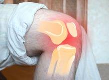 Smärtsamt knä - skelett- illustrationläkarundersökningbegrepp Hälsovårdbegreppet, manlidande från smärtar i knäet, closeup arkivfoto