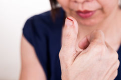 Smärtsamt tummefinger med klippt skada Royaltyfri Fotografi