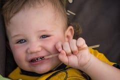 Småbarn med rodnad på huden som lider från matallergier royaltyfri bild