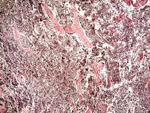 Small-cell lung cancer of a human. Photomicrograph panorama as seen under the microscope, 50x zoom stock photo