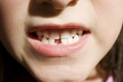 Small girl toothless smile Royalty Free Stock Images