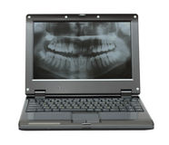 Small laptop with dental picture of jaw Stock Photos
