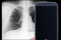 Smartphone x-ray Royalty Free Stock Images