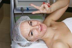 SMAS lifting Ultrasound Royalty Free Stock Image