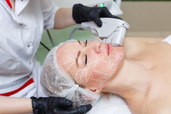 SMAS lifting Ultrasound Royalty Free Stock Photo