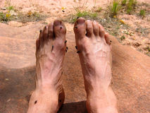 Smelly Feet. Feet so smelly they attract flies Royalty Free Stock Photography