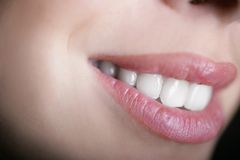 Smile. Beautiful smile with white teeth close up Royalty Free Stock Photo