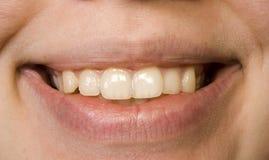 Smile. Lips of the mouth, labia oris, fase, smile, woman, girl, miss, teeth, dentes, dentes stock photo