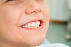 Smile of boy. Close-up of little boy smiling at dentist office Stock Photo