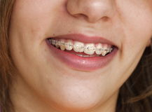 Smile with braces. On teeth Royalty Free Stock Photos