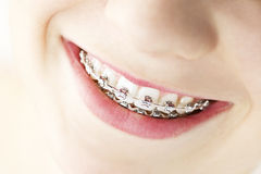 Smile with braces. Closeup on braces and white teeth of smiling girl Royalty Free Stock Images