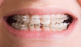Smile with braces  Royalty Free Stock Photo