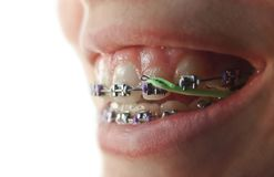Smile with Braces. Macro shot of a smiling mouth with turquoise and purple orthodontic braces, green rubberbands, against a white background, short depth of Royalty Free Stock Photos
