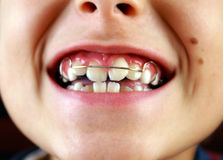 Smile with braces on teeth. Boy and smile with braces on teeth stock image