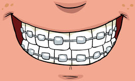 Smile with braces. On teeth illustration Stock Photo
