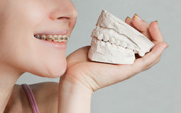 Smile with bracket & plaster jaw model Royalty Free Stock Image