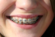 Smile with brackets on teeth Royalty Free Stock Image