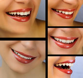 Smile collage. Dental health collage, beautiful girl's smile Stock Image