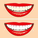 Before and After Smile Royalty Free Stock Photos