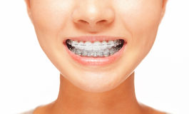 Smile: teeth with braces. Female smile: teeth with braces, dental care concept, front view Stock Photo