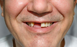 Smile without teeth with bristles. Man smile without two front teeth with bristles stock photography