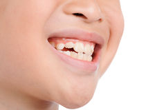 Smile teeth from kid. Close up thin focus on Boy smile show teeth on white background Royalty Free Stock Image