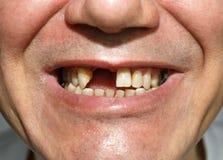 Smile without teeth Stock Photos