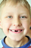 Smile without tooth Stock Images