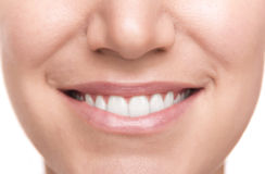 Smile with white healthy teeth. Royalty Free Stock Photo