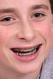 Smilin' kid. Teenager with braces Stock Photography