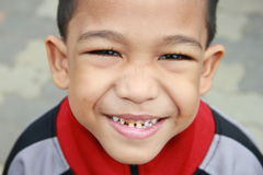 Smiling Asian boy exposing decaying teeth. Stock Photo