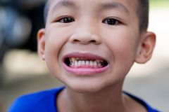 A smiling Asian boy And saw his tooth decay